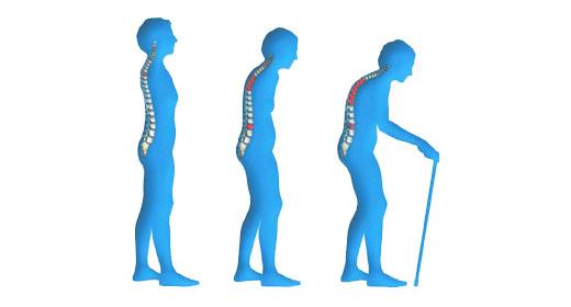 Osteoporosis & Inguinal Hernia – Dr Sebi