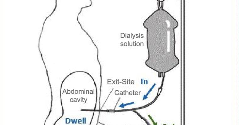 Diabetes & Dialysis – Dr Sebi