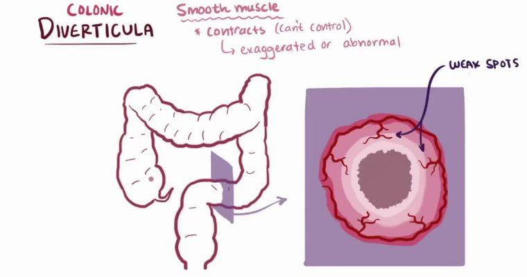 Dr Sebi on Diverticulitis, Polyps, Inflammation